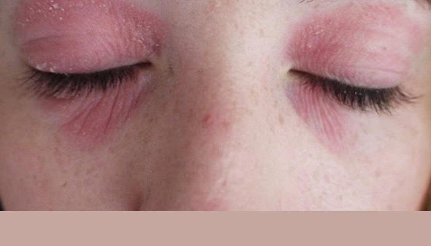 Аллергия на косметику: почему и что делать?
